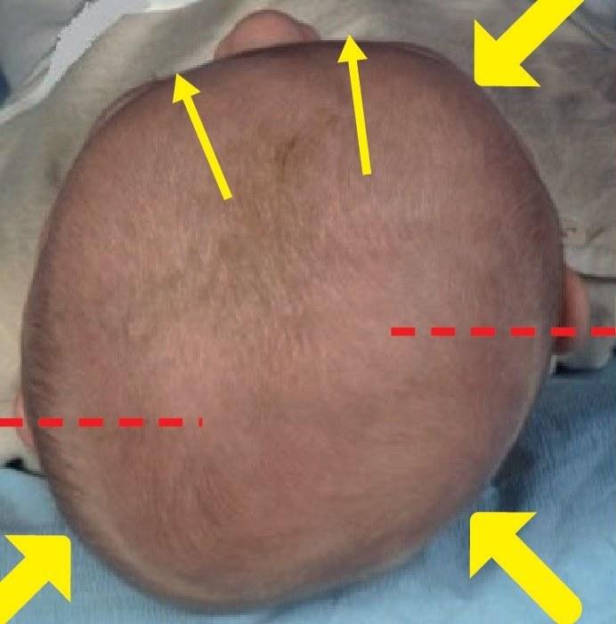 plagiocéphalie occipitale - Posturopole