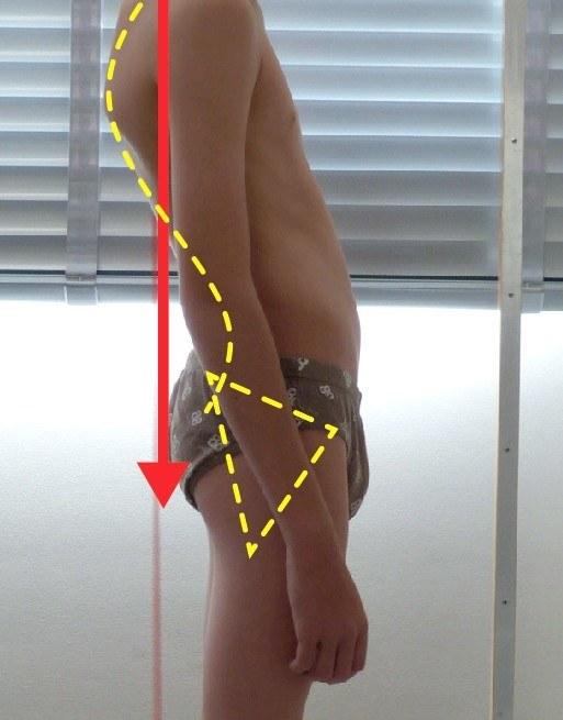 Désequilibre postural enfant - Posturopole
